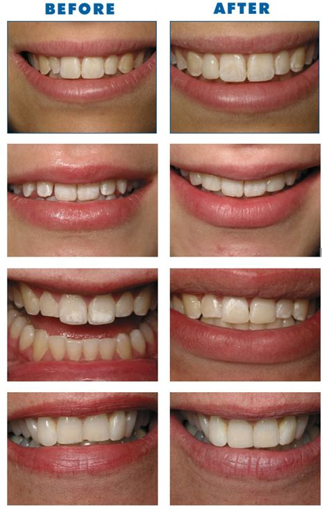 clear bonding for teeth picture 6