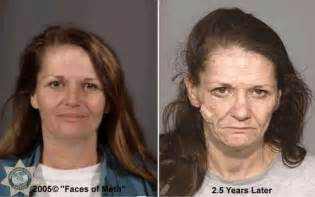 before and after pics of people who used picture 14