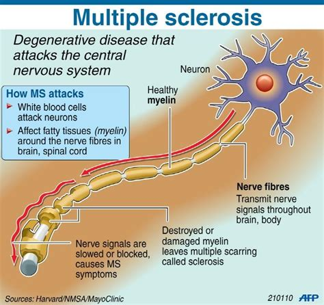 multiple sclerosis and gastrointestinal disorder picture 2