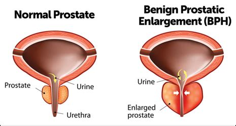does masterbation cause enlarged prostate picture 15