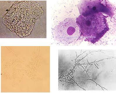 tindamax vs flagyl picture 3