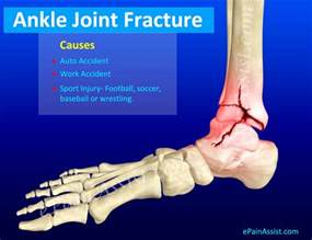 ankle joint pain picture 18