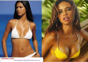 best breast implants in camarillo picture 5