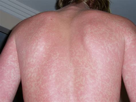 hives due to insect bite picture 6