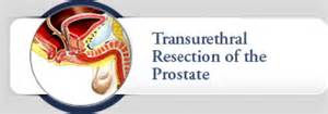 Transurethral resection of the prostate turp picture 9