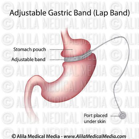 the stomach weight loss band picture 1