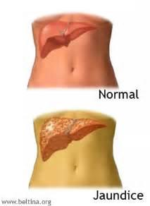 jaundice in liver cirrhosis treatment picture 10