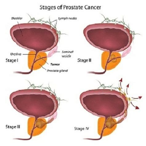 Prostate cancer stages picture 6