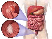 colon cancer pictures picture 18
