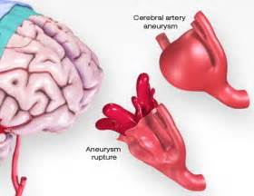Aneurysm warning bleed blood pressure 80 50 picture 4