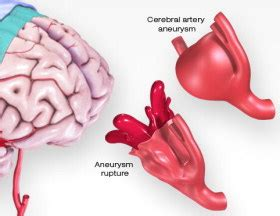 Aneurysm warning bleed blood pressure 80 50 picture 8