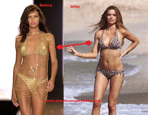 breast expansion t&a before and after pdf picture 1
