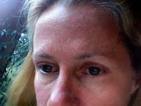why does a probiotic dry out my skin picture 15