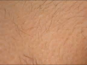 genital hair removal pictures picture 10