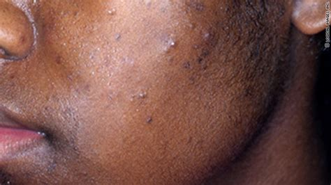 antidepressant cleared acne picture 7