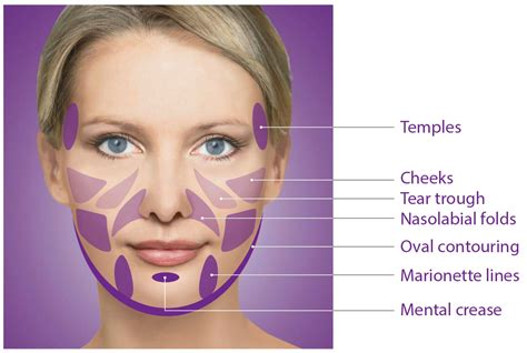 arkansas breast augmentation picture 7