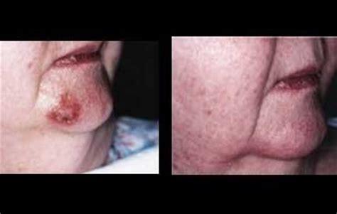 aldara skin care picture 14