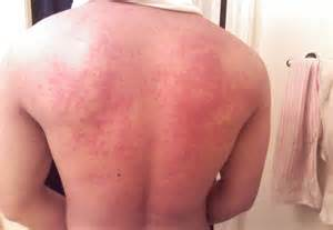 skin rash lamisil side effect picture 17