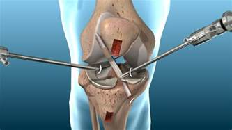 overstuffed knee joint replacement repair picture 7