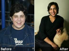 josh peck weight loss picture 2