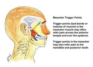 Eye muscle pain picture 5