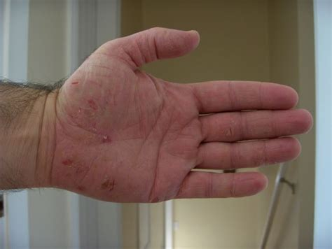 cracked skin on hands picture 6