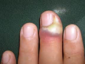 paronychia infection home remedy picture 9