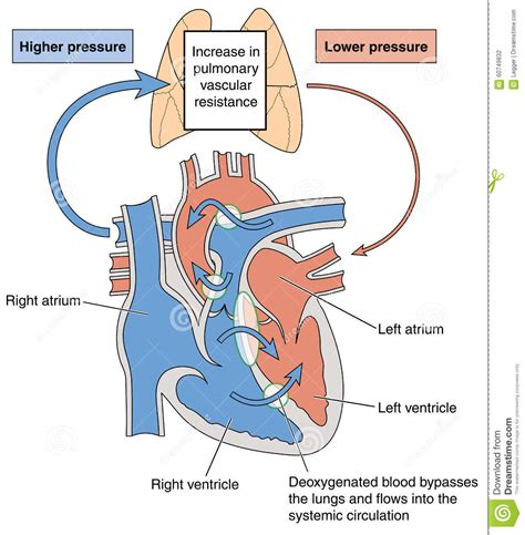 abnormal blood flow picture 10