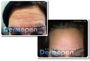 before and after pictures of dermaplaning picture 13