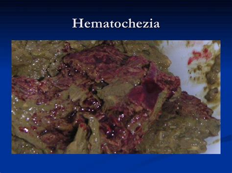 intestinal ulcers picture 10