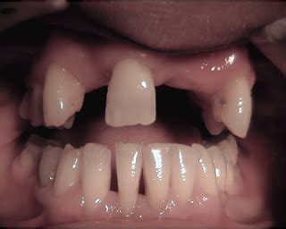 photos of people with teeth missing picture 13