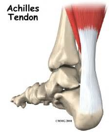 ankle joint effusion and ruptured archilles tendon picture 2