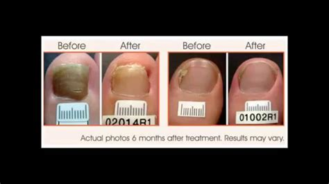 i got rid of nail fungus by picture 3