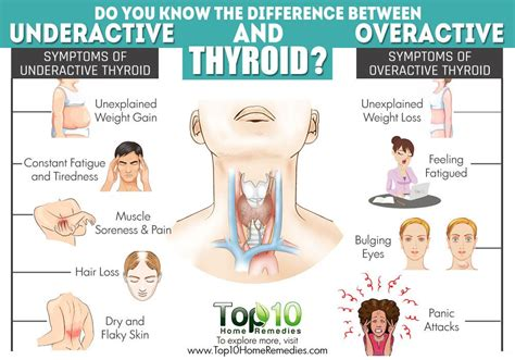 can thyroid cause ear pressure picture 5