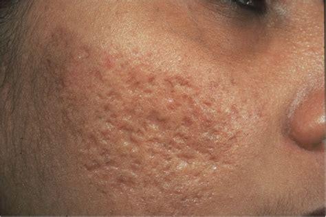 acne free picture 1