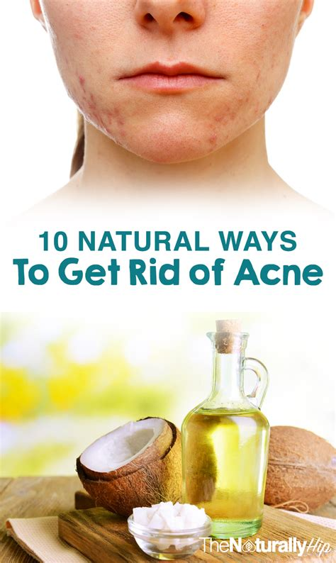 acne treatment as seen on tv picture 3