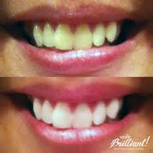 clarksville teeth whitening picture 11