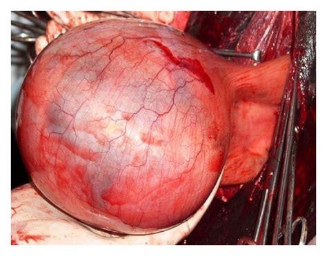 Prolaps tube picture 2