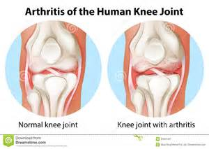 human knee joint picture 3