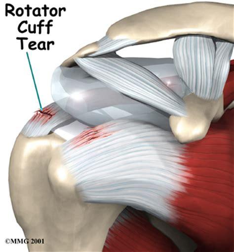 shoulder pain picture 9