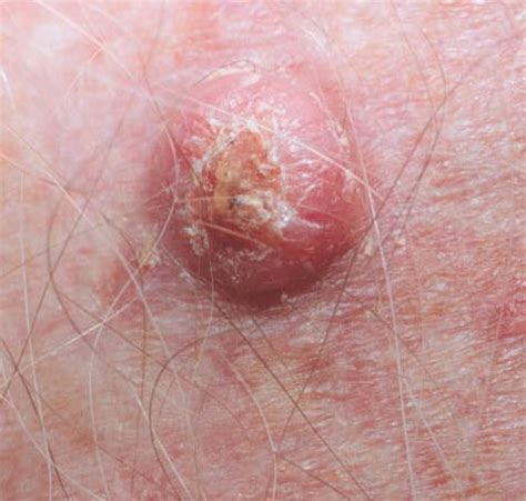 early signs of herpes picture 2