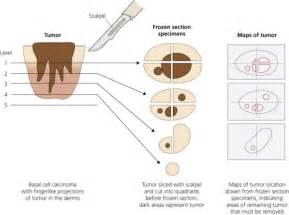 basal cell skin c picture 5