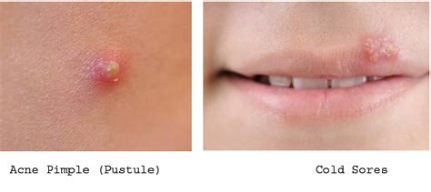 are pimples on the related to herpes picture 1