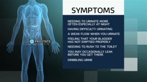symptoms of prostate trouble picture 1