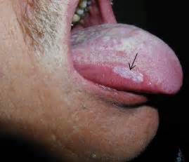 mild burning head of penis herpes picture 6
