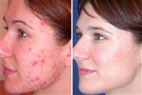 use of antibiotics acne treatment picture 5