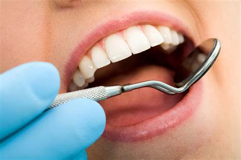 benefits of teeth cleaning picture 9
