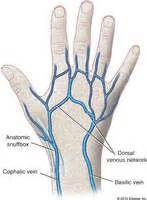 hitting the blood veins in hands what are picture 13
