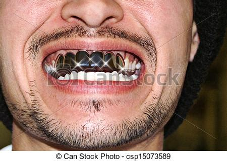 white gold teeth picture 2