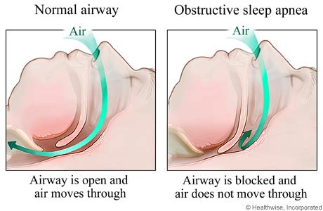 copd and sleep apnea picture 3